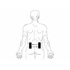 Модулированная среднечастотная электротерапия в качестве метода лечения острой боли в пояснице